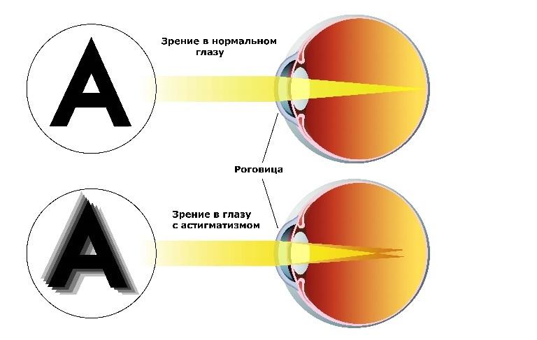 astigmatizm.jpg